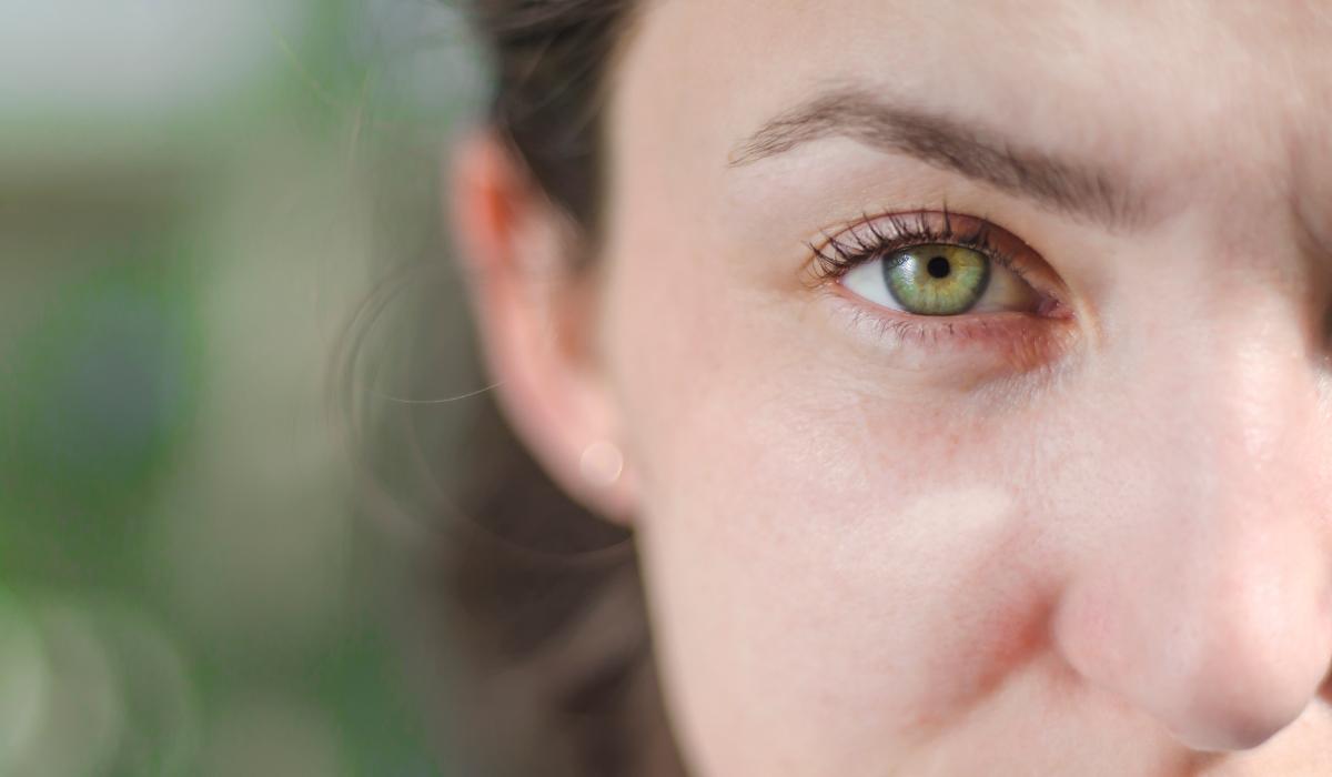 Zöldek a Szemeid? Nem Is Tudod Hogy Mennyire Különleges Vagy…
